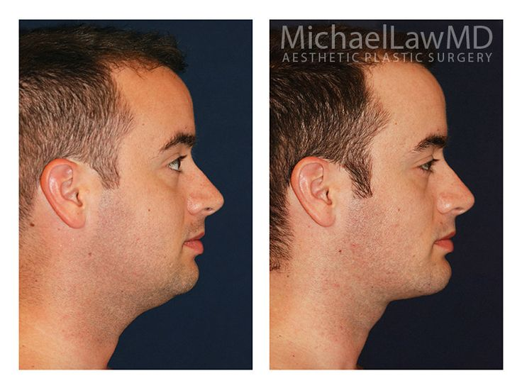 Neck Liposuction / Chin Liposuction 6 - Michael Law MD