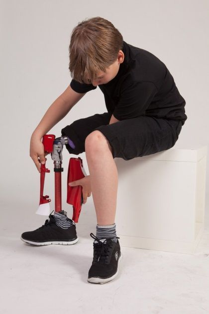 3D-printed covers make prosthetics modern and stylish