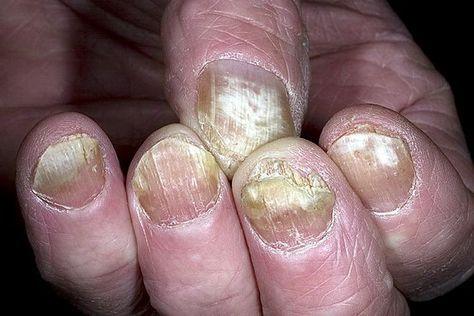 Грибок на ногтях или пальцах доставляет очень много неприятных минут. Я это знаю по себе. Заразилась грибком на рынке. Хотела купить новые перчатки к зиме, перемерила их уйму, а потом однажды обна…
