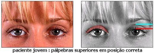 PALPEBRAS : Cirurgia de Blefaroplastia Fotos e Preços