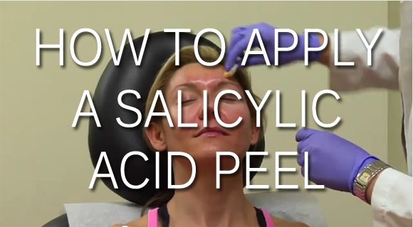How to apply a salicylic acid peel & get rid of your acne