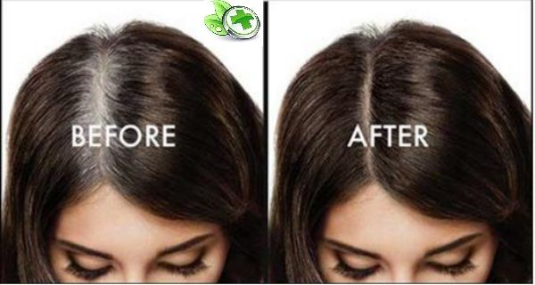 Sadly that more and more people among 30 years old are affected with this problem of graying and white hairs. The factors are numerous but the solution is the best to be natural and not to harm our health. Searching … Read More