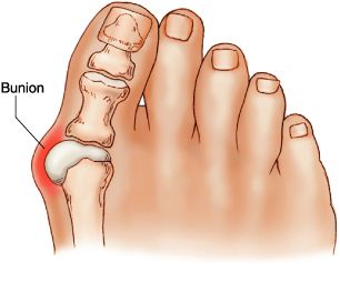 Bunions (Hallux Valgus)-A bunion is a deformity of the base joint of the big toe. The cause is not clear in many cases. The deformity may cause the foot to rub on shoes which may cause inflammation and pain. Good footwear is often all that is needed to ease symptoms. An operation to correct the deformity is an option if good footwear does not ease symptoms. A bunion is when your big toe is angled towards the second toe. This causes a bump on the side at the base of the big toe.