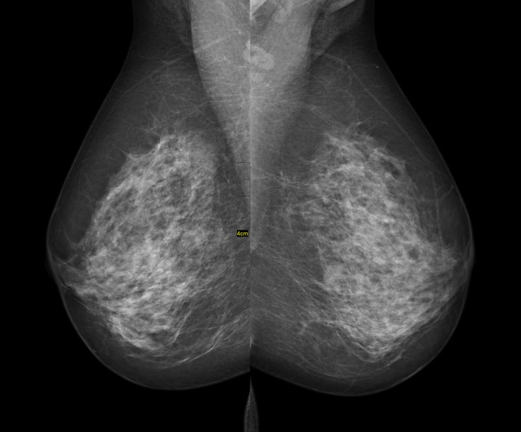 How Much Does Mammogram Cost