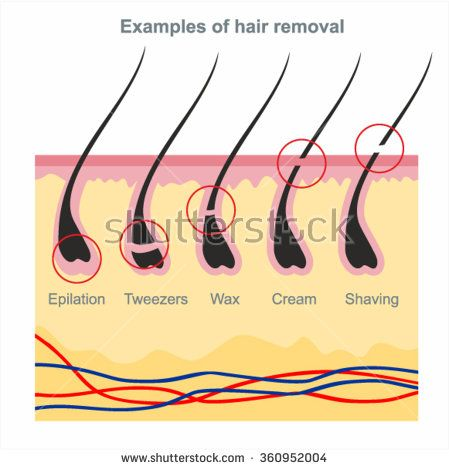 Best 25 laser hair removal ideas on pinterest laser hair examples of hair removal waxing shaving tweezers creams wax hair removal productslaser hair removalhair removal diyhair removal solutioingenieria Gallery