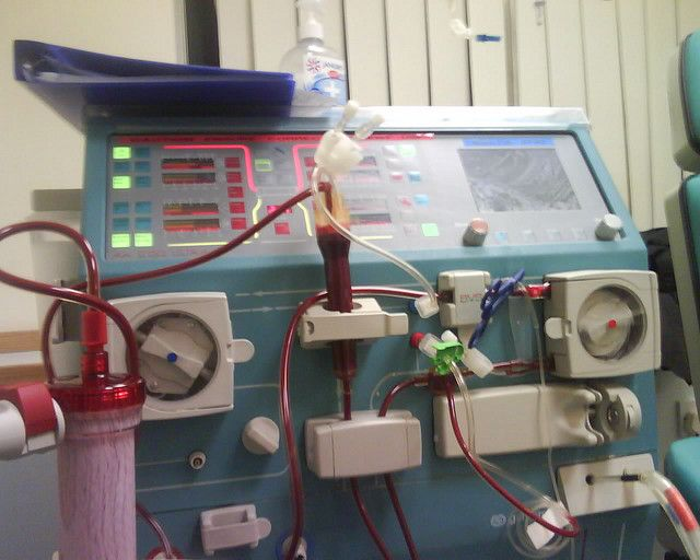 images of kidney dialysis | Kidney dialysis machine | Flickr - Photo Sharing!