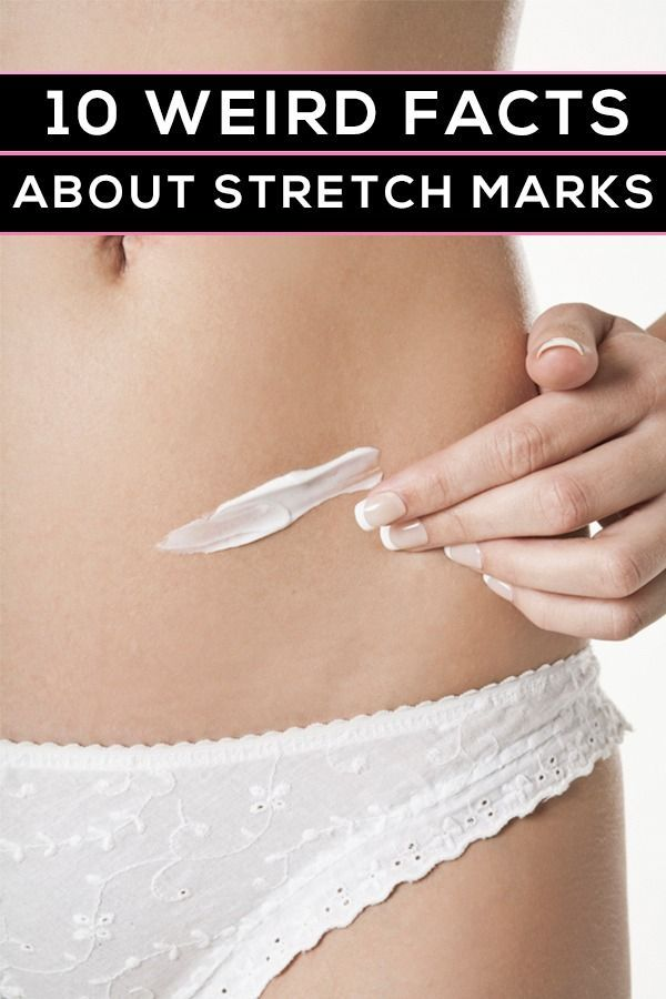10 things no one ever tells you about stretch marks