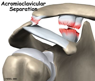 Acromioclavicular Joint Separation | Houston Methodist