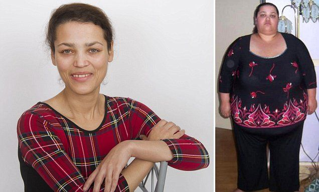 Emma lost 20st by dieting. Should NHS pay to remove the saggy skin?