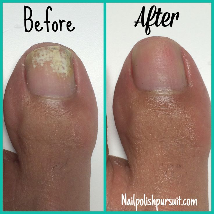 How to remove white marks from your toes | Nailpolishpursuit.com