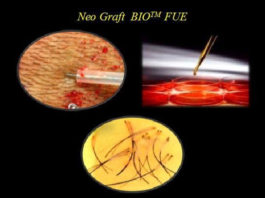 The #bio #FUE #hair #transplant is the improved and advanced surgery of FUE hair transplant. With Bio #FUE hair transplant treatment, you can involve the special factors like #injection of #live #cells into the #affected or #bald area. Get more #natural and #desired result with this treatment.