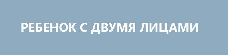 РЕБЕНОК С ДВУМЯ ЛИЦАМИ