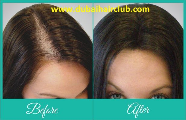 Are you looking for Female hair Restoration in Dubai? Dubai Hair Club is one the best option. Call us today or Book Appointment Now at +971528999342