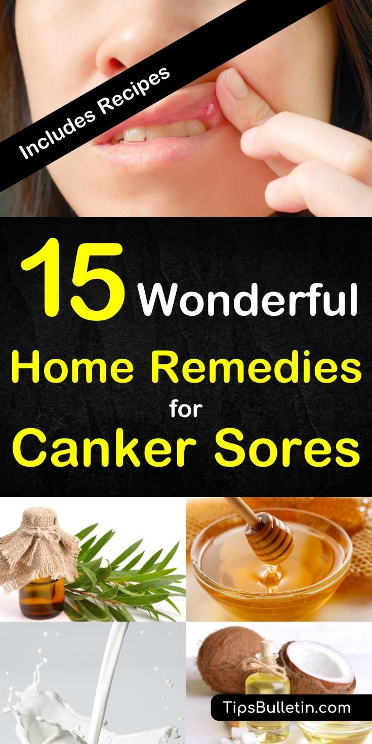 15 wonderful home remedies for canker sores. With detailed information and pictures on what causes and how to get rid of a canker sore on gums, tongue or on the lip. Includes various recipes for all stages of canker sore.#cankersore #naturalremedy #remedies