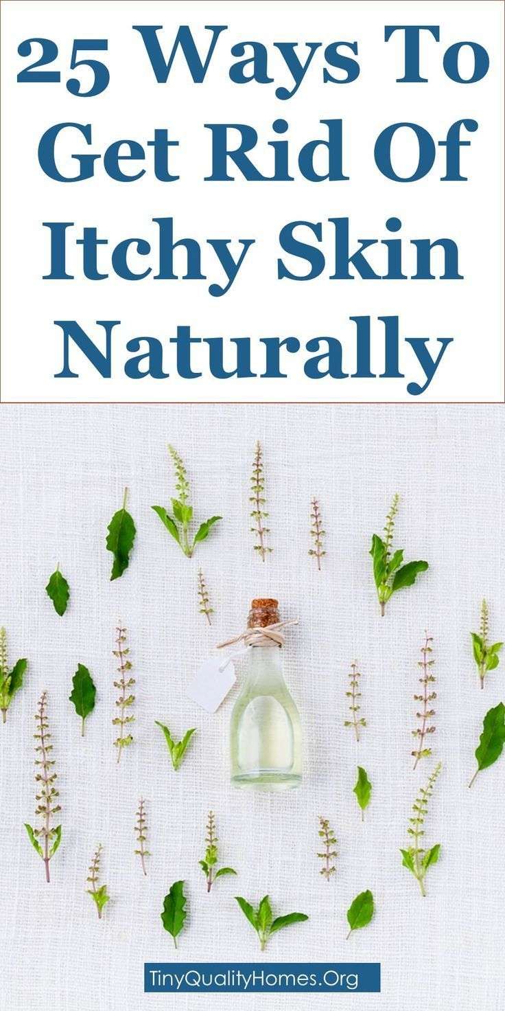 How To Get Rid Of Itchy Skin Naturally – 25 Home Remedies