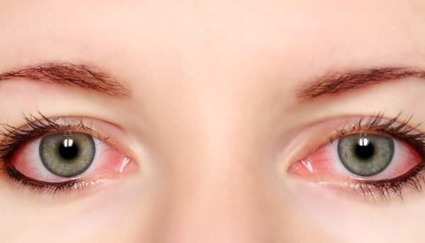 Natural Remedies for Pink Eye Treatment Natural remedies for pink eye treatment. How to cure pink eye? How to get rid of pink eye? How to treat pink eye fast? Pink eye remedies at home.