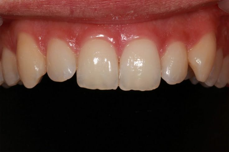 Consultation - photos protocol #dentist #dental treatment