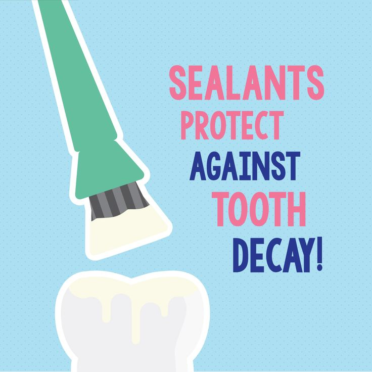 PARENTS—MAKE SURE your kids get dental sealants as soon as their permanent teeth come in! Sealants protect the grooves and fissures of teeth and help prevent cavities.