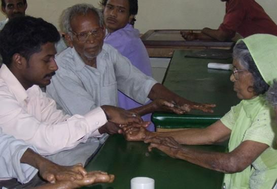 When hands and feet are damaged by leprosy, completing daily tasks can be difficult. Our occupational therapists at the Leprosy Mission help to create custom tools and utensils to make living independently easier for those recovering from leprosy.