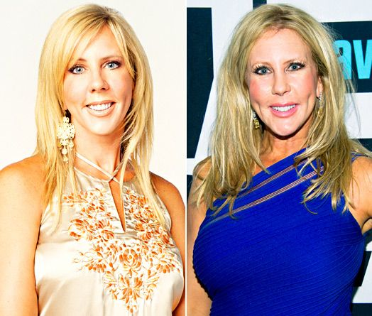 Real Housewives' Plastic Surgery: See Their Before and After Pictures! - Us Weekly