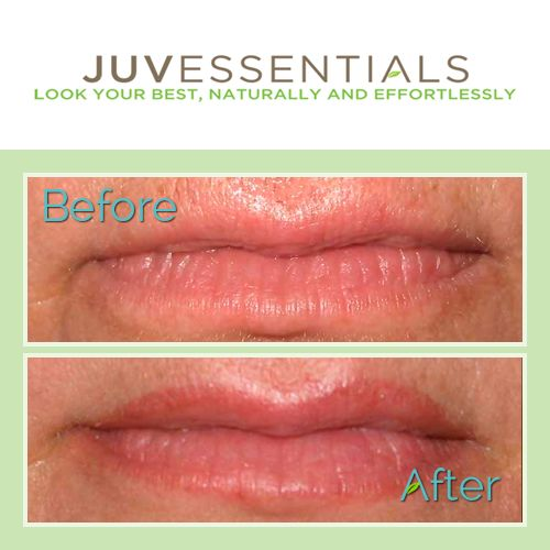Unlike a typical injectable filler, lip tattoos can stimulate the creation of your lips' own natural collagen and give them a fuller appearance – permanently.  #Lips #PermanentMakeup #Effortless #JuvEssentials