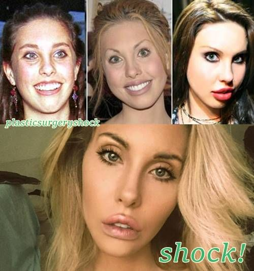 Chloe Lattanzi Plastic Surgery Before and After