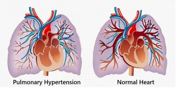 Ανησυχία των ασθενών με πνευμονική υπέρταση για την παύση του προγράμματος μεταμόσχευσης πνευμόνων από το Πανεπιστημιακό Νοσοκομείο Βιέννης
