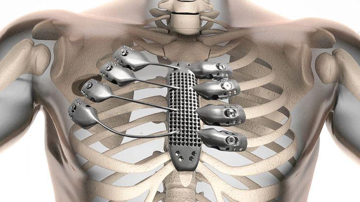 A primeira caixa torácica de titânio impressa em 3D do mundo é uma maravilha da medicina