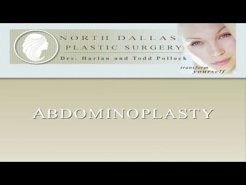 Todd Pollock MD | http://vpage.us/2lTc9H3 | Dallas: 214.363.2575 Allen: 214.509.0270  This video demonstrates a simple surgical maneuver that can be added to any abdominoplasty procedure which will eliminate the need for drains allow upright ambulation earlier yet reduce the risk of other complications of abdominoplasty.  We term this technique progressive tension sutures which are used to actively advance the abdominoplasty flap.    The concept of progressive tension sutures is seen in this…