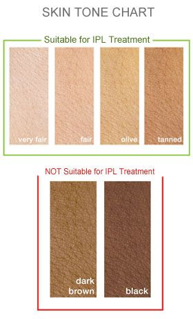 Is IPL right for you? Skin Tones ... IPL Intense Pulsed Light Hair Removal System #urbanalluresf