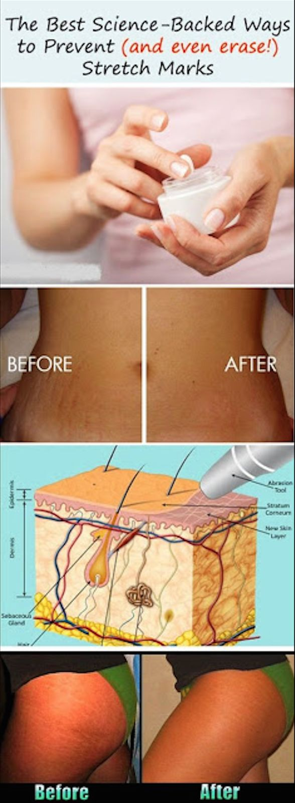 preventing and erasing stretch marks