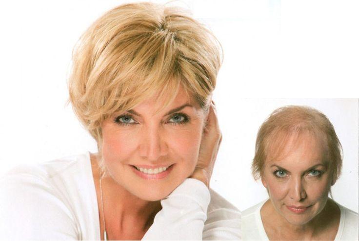 Hairdreams, Tratamientos de volumen, espesor  alargamiento y anticaída de cabelloCon resultados visibles y eficaces, incluso en casos de caída avanzada.