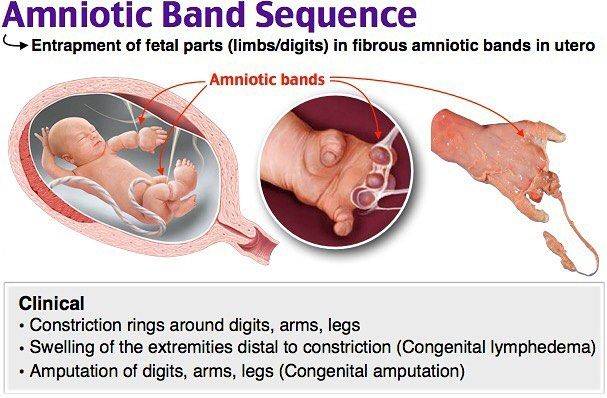 Amniotic Band Sequence
