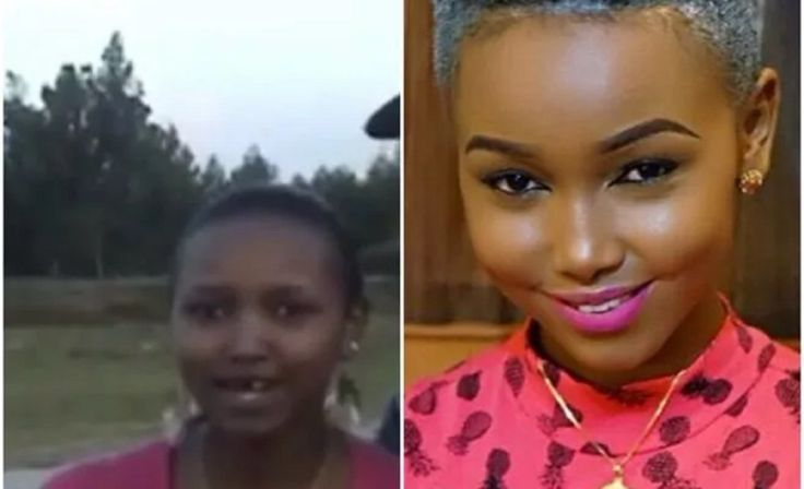 Socialite Huddah Monroe Fired Back At Fans Who Trolled Her For Missing Some Teeth (Video/Photos)