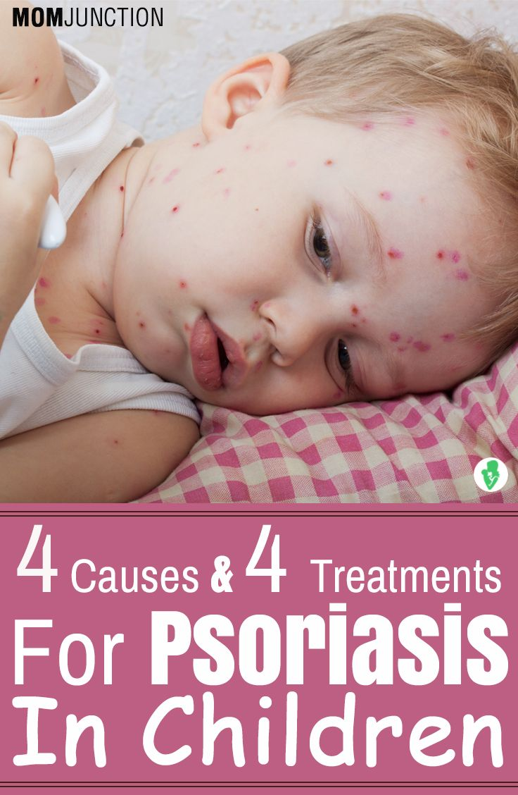 Psoriasis In Children Types Symptoms And Treatment