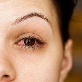 Read about pink eye types (viral, bacterial, allergic conjunctivitis), symptoms, treatment, home remedies, medication, and causes. Learn how it is transmitted, how long it lasts, and how to prevent it from spreading.