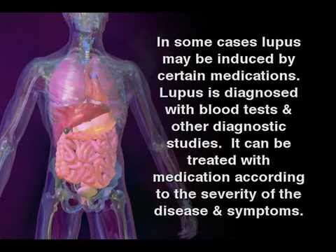 For those who ask...what is lupus  What is Lupus - Lupus Symptoms in women and men