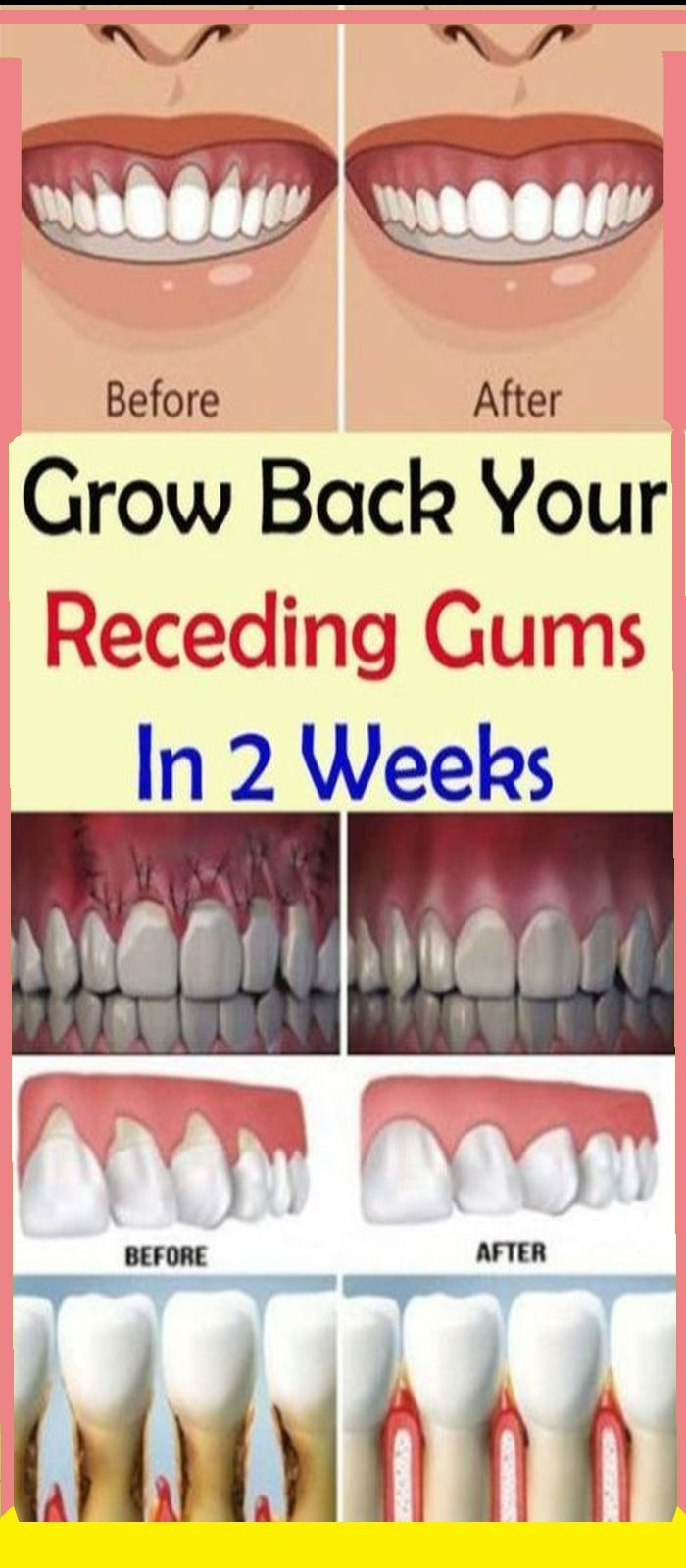How To Get Feeling Back In Your Lip After Dentist