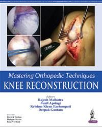 Mastering Orthopedic Techniques: Knee Reconstruction