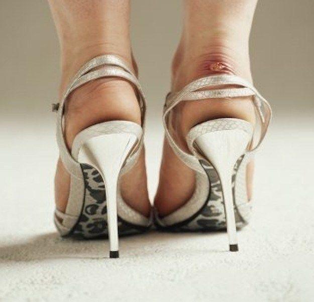 Orrore vesciche ai piedi? I rimedi imperdibili per un'estate senza dolori! | ClioMakeUp Blog | Bloglovin'