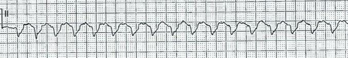 Monomorphic ventricular tachycardia.