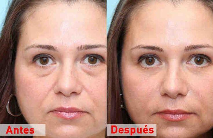El proceso de envejecimiento hace que nuestra piel se vea flácida y sin brillo. La primera zona que refleja los cambios causados por el envejecimiento es la zona de los ojos. Los músculos y los tejidos que rodean el ojo se vuelven débiles y empiezan a hundirse a medida que envejecemos.    Los oj