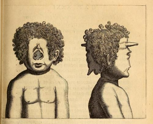 Case of cyclopia from Fortunius licetus de monstris. Gerardi Blasii, 1665.