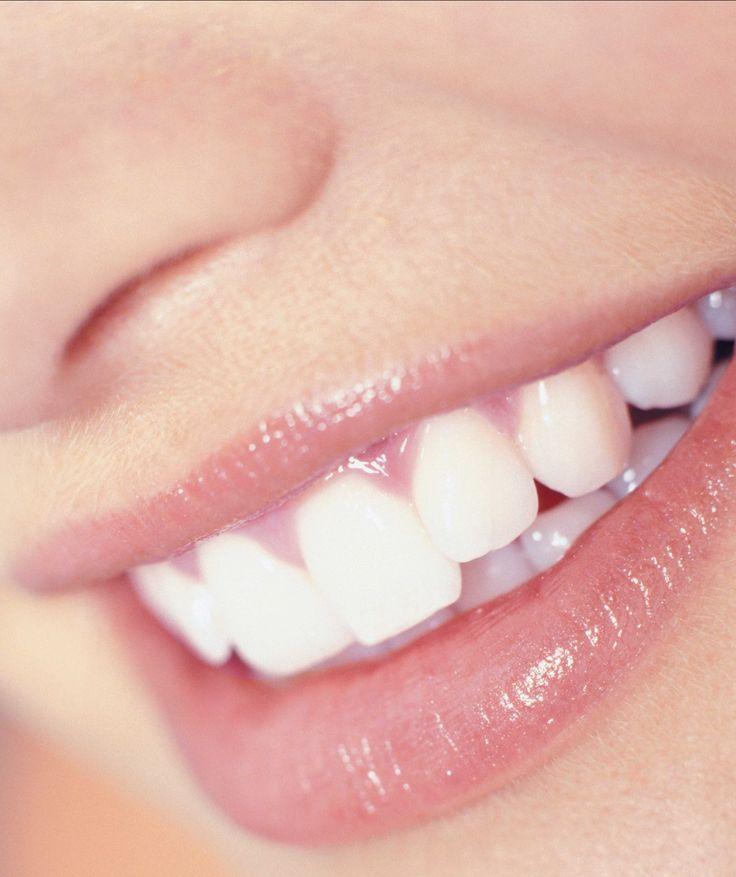 Blanquea tus dientes en casa con laurel #TheTaiSpa #Dientes #BeWell #BeBeautiful