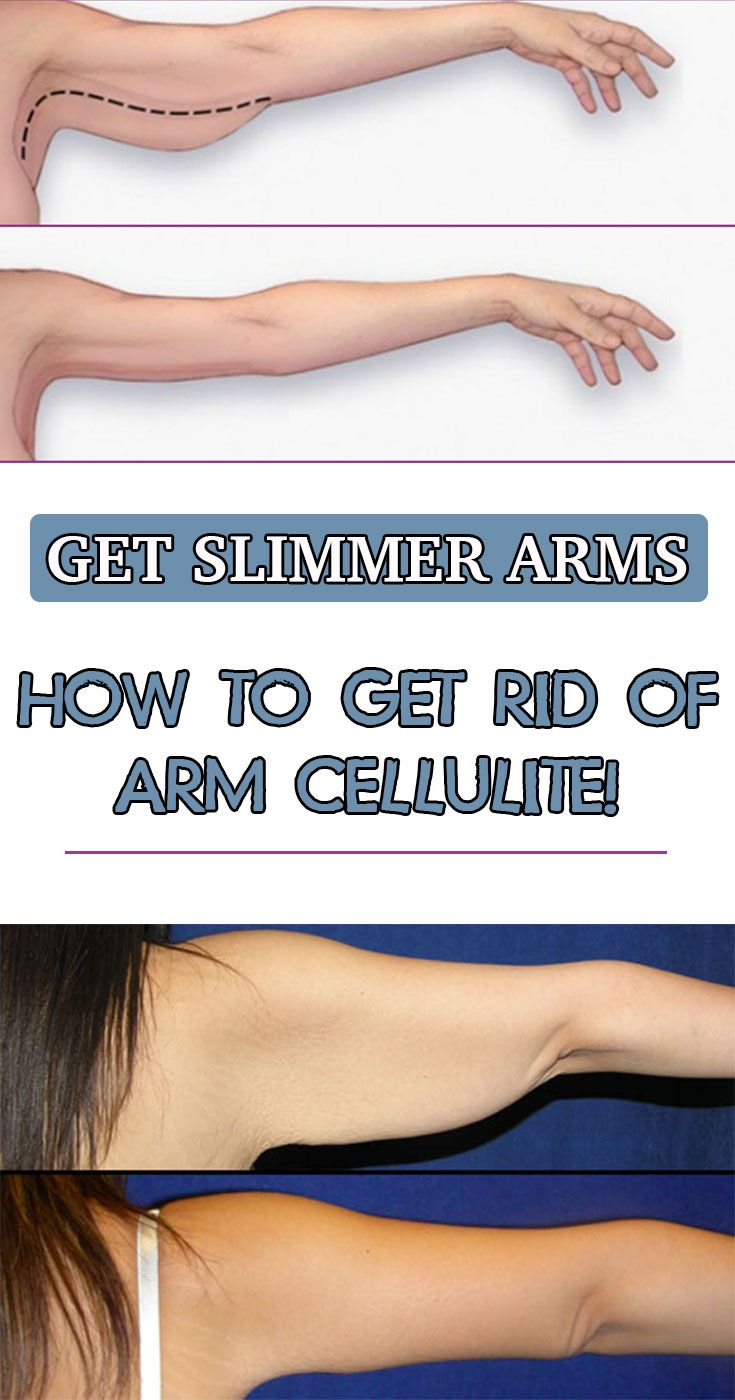 how to get thinner arms at home