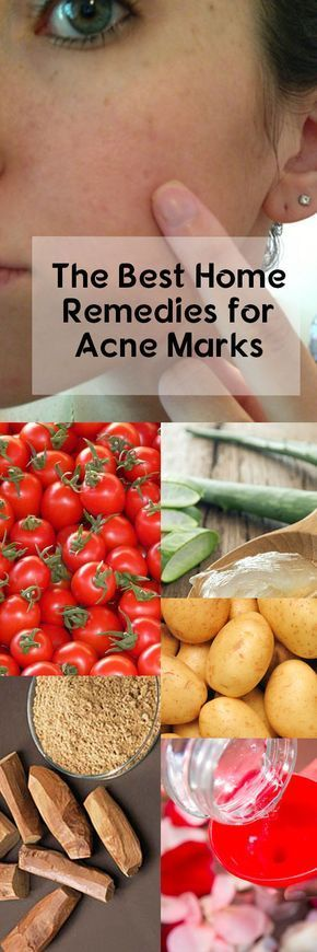 The Best Home Remedies for Acne Marks