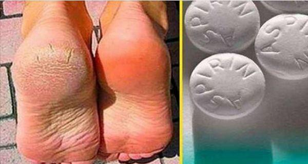 Popękane pięty i sucha, szorstka skóra na stopach jest bardzo częstym problemem, z którym borykamy się od czasu do czasu. Dzieje się tak ze względu na szereg przyczyn, takich jak nieodpowiednie buty, niewłaściwa pielęgnacja stóp i niezdrowe odżywianie.