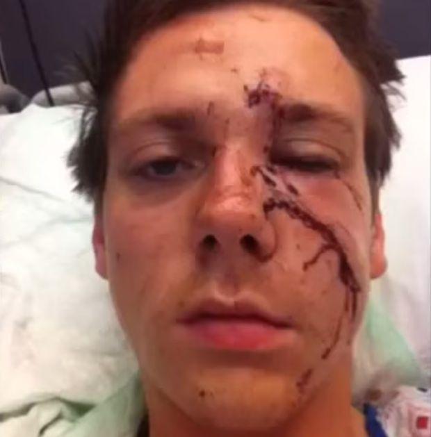 facial man manhattan surgery