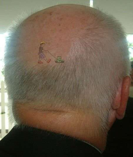 Bob had no clue as to what was really causing his baldness.