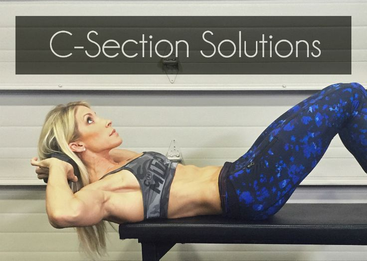 """C-Section Solutions: How to Eliminate the Pooch and Reduce the """"Tummy Shelf"""" 